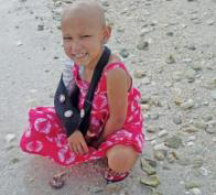 In 2011, eight-year-old Josalyn Kaldenberg was just a few days away from having her right arm amputated due to a malignant tumor inside the humerus. Shriners Hospital for Children and Moffitt Cancer Center teamed up on an unprecedented surgery to save her arm.
